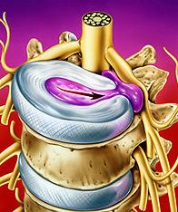 hernia-discal2