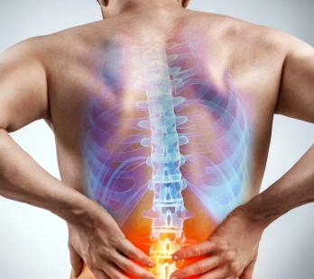 5 tips que ayudan en el dolor ciático