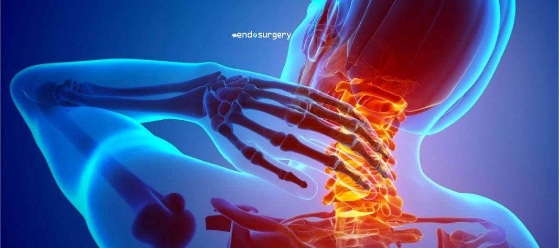 3 tips para prevenir el dolor de cuello