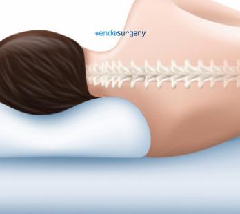 Pueden mis hábitos de sueño ayudar a mi dolor cervical?
